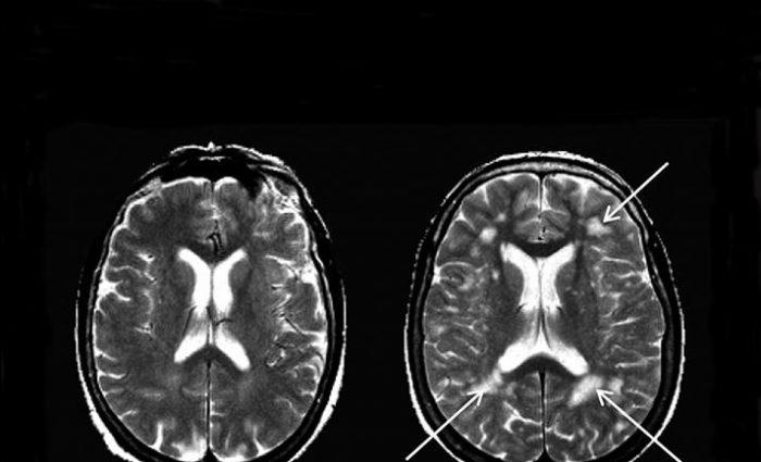 La migraine abime-t-elle le cerveau?